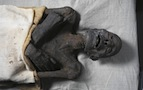 mummies disease